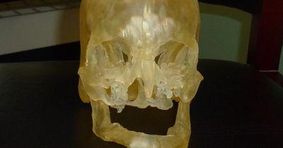 3D-Drucker hilft bei Gesichtstransplantation