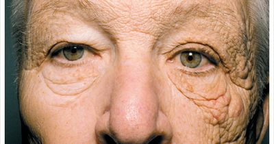 Bei diesem Mann ist eine Gesichtshälfte doppelt so schnell gealtert wie die andere!
